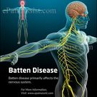 Batten Disease primarily affects the nervous system