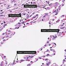 Alveoli in the lungs have:  Type I pneumocytes--- gas diffusion Type II pneumocytes --- surfactant p