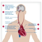 Rapid and irregular heart beats in Atrial Fibrillation and Stroke