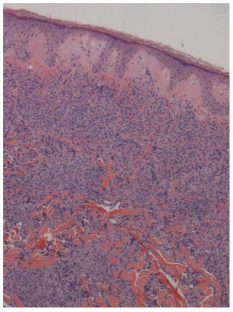 Figure 2 Section of abdominal lesion from skin biopsy