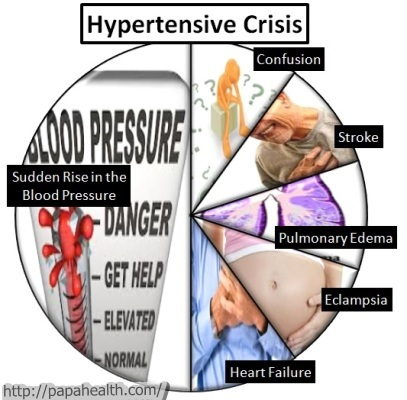 Hypertensive Crisis: Hypertensive crisis can cause several complications and leaves the patient help