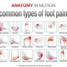 Foot pain, pain location and foot pain chart
