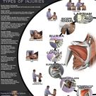 "Great ""Shoulder Pain"" chart! Repinned by SOS Inc. Resources http://pinterest.com/sostherap"