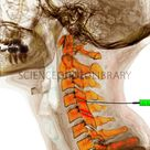 Coloured lateral X-ray of the bones of a human neck undergoing facet joint injection.