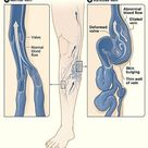 Causes of Varicose Veins - Medline Pubmed
