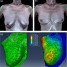 3D computer technology addresses body-image issues of breast reconstruction
