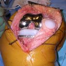 Minimally-Invasive Surgery (MIS) Quadriceps-Sparing Total Knee Replacement