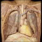 The heart muscle itself is composed of different layers, which can be divided into three main layers