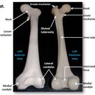 Femur, anterior and posterior views with labels - Appendicular Skeleton Visual Atlas, page 22