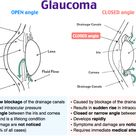 Open Angle vs. Closed Angle Glaucoma Rosh Review