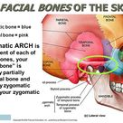 zygomatic process vs zygomatic arch