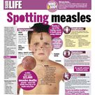 Measles is a highly contagious, serious disease caused by a virus.