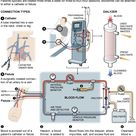 How dialysis works.