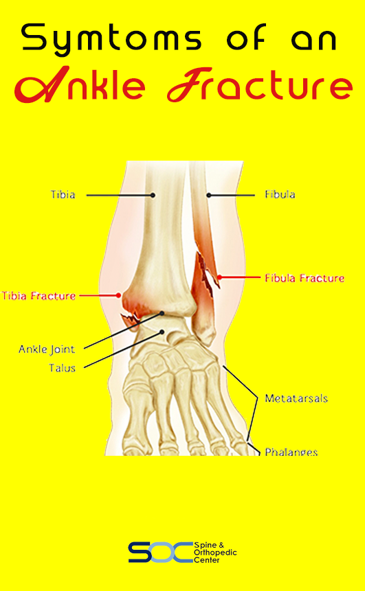Ankles fractures can range from avulsion injuries (when small pieces of bone are pulled off) to seve