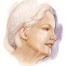 Am I a Good Candidate for Facelift Surgery? - Procedures - Head - Facelift