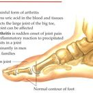 No More Gout Pain !  A Testimonial to Pain Relief from Gout.  Sooooo easy and works for those that a