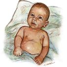 Bronchiolitis and Respiratory Syncytial Virus.