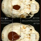 Real skull anatomy compared to decompressed skull viewed frm bellow, upward into the skull