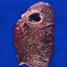 A lung abscess is a circumscribed collection of pus within the lung, is are potentially life threate