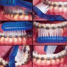 How To Clean Orthodontic Braces at Home?