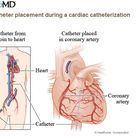 Catheter Placement during a Cardiac Catheterization