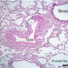 histology slide of lung | Biology W2501 :: Contemporary Biology Lab -- Histology