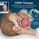 The primary goal of CPAP is to decrease the work of breathing so the patient doesn't deteriorate