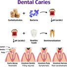 Tooth decay, also known as dental caries or cavities, is a breakdown of teeth due to acids