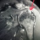 #Shoulder #MRI shows a #rotator #cuff #tear in a #patient with #pain who #fell. #radiologist #radiol