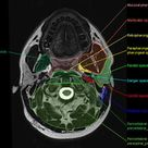 Anatomy of the Brain - MRI images in 3 planes