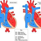 Coarctation of the Aorta - high BP in upper extremities, low BP in lower extremities.