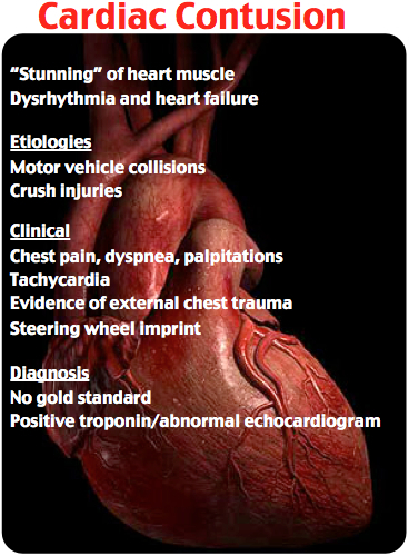 Cardiac Confusion Rosh Review
