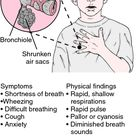 Information about asthma and the symptoms it entails. #BeatAsthma