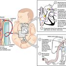 Review of Cardiovascular System Circulatory System as a Circuit