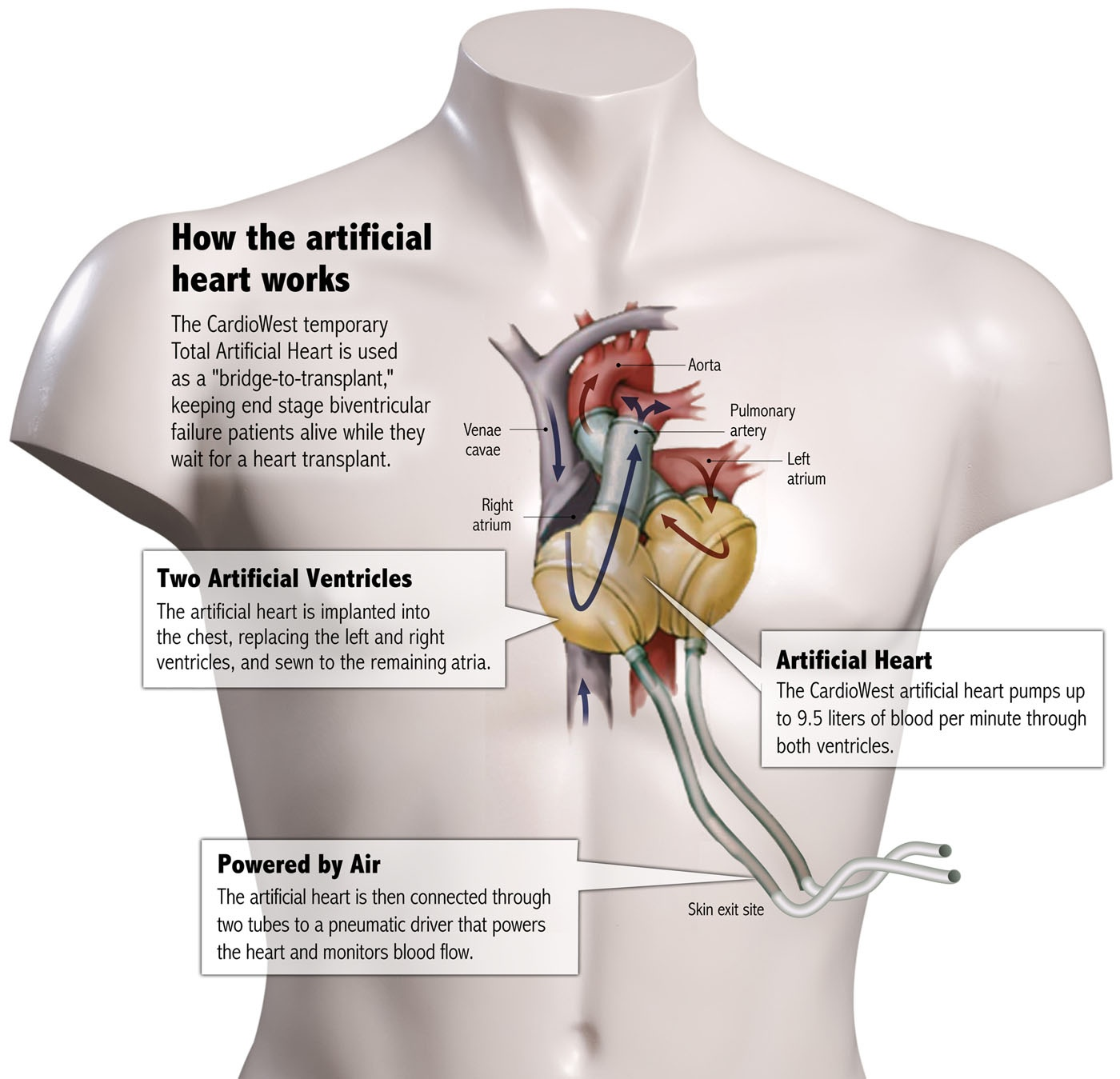 How the Artificial Heart Works