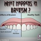 What happens in bruxism?