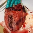 The heart. Heart dissection.