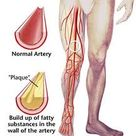Peripheral vascular disease is the second major problem diabetes causes in the feet.http://www.axisf