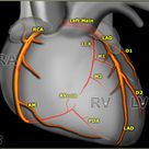 Normal and Anomalous Coronary Arteries: Dual Source CT in Cardiothoracic Imaging