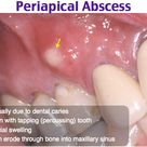 A periapical abscess is a collection of pus at the root of a tooth