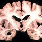This shows a brain slice taken from a person with Alzheimer's.