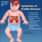 What are the Symptoms of Krabbe Disease?