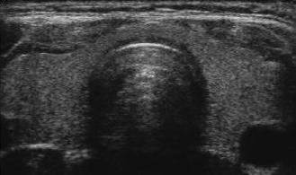 Thyroid Ultrasound - Normal.