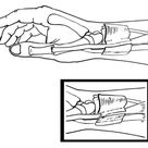 One of the sharp pains of the wrist is DeQuervain's Tendinitis.