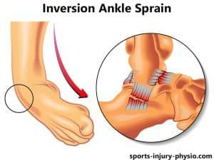 Lateral or inversion ankle sprain
