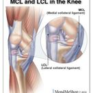 The knee has 2 collateral (parallel) ligaments and 2 cruciate (crossing) ligaments. The medial colla