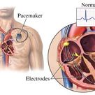 The pacemaker is implanted, normally in the upper chest, as part of a surgical procedure