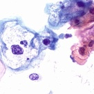 Low Grade Lesion- associated with HPV