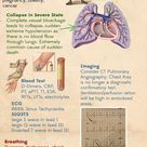 Pulmonary Embolism (PE). Causes, signs, risk factors, diagnosis and management.