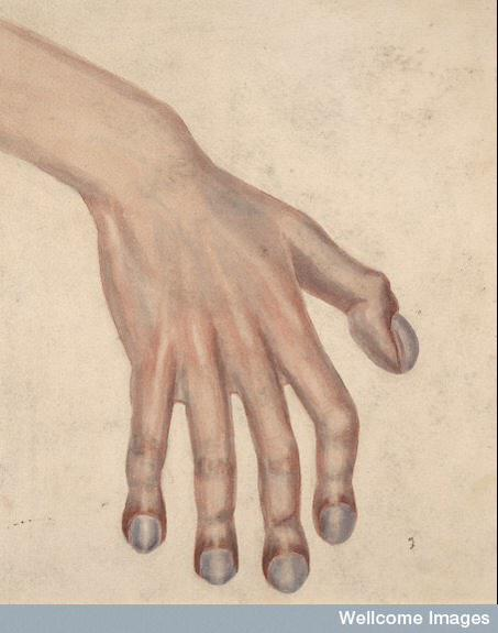Clubbed fingers due to malformation of the heart. 1890 via @spangledpirate (Dr Jessica Roberts)